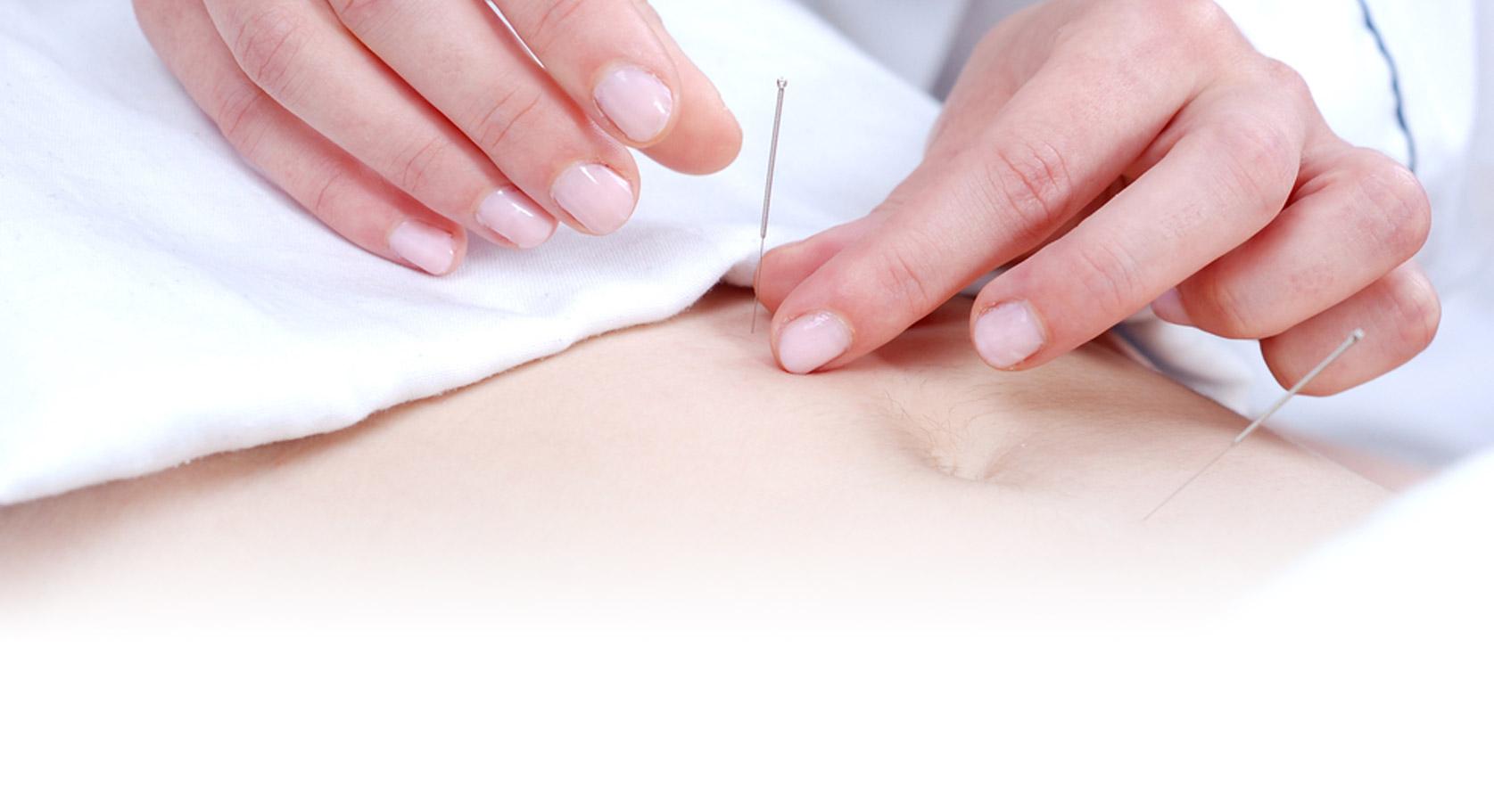 Nåler i person akupunktur